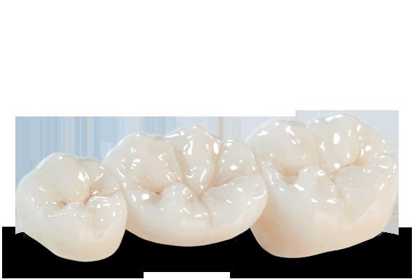 corone dentali