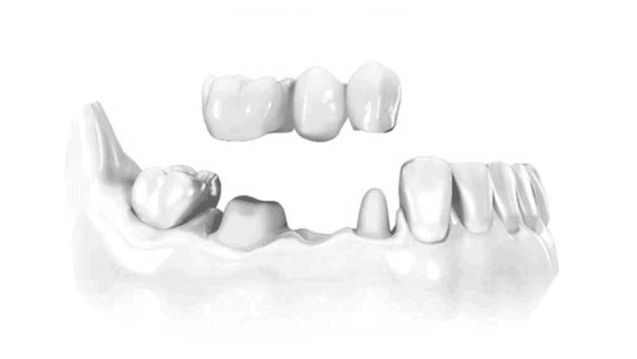 Protesi Dentali Fisse su Denti Naturali