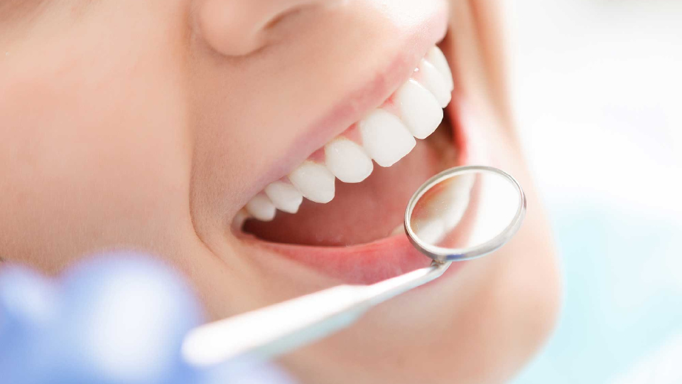 cure dentali professionali