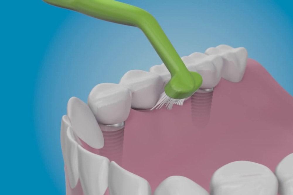Come prenderti cura degli impianti dentali