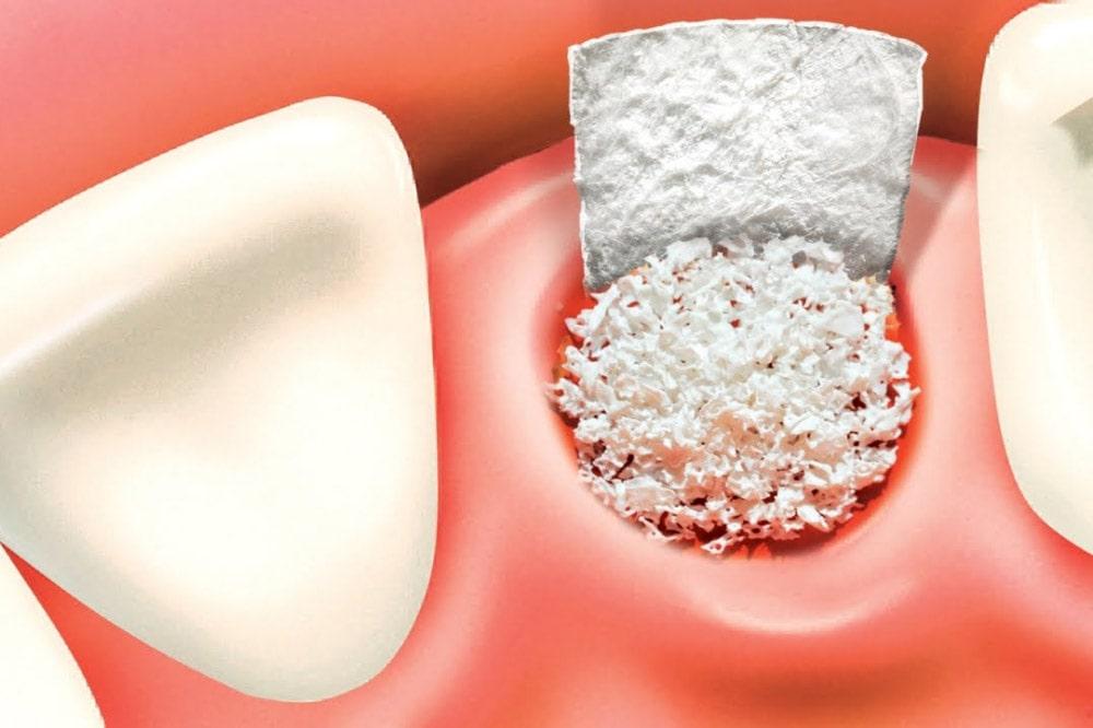 L'innesto osseo per gli impianti dentali