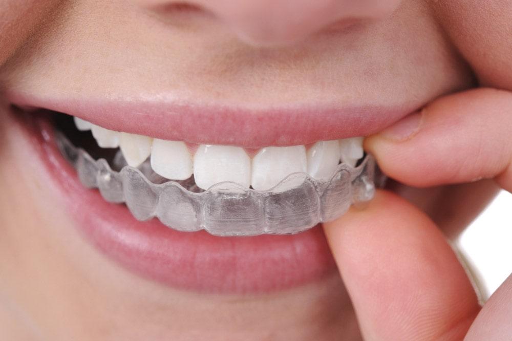Ortodonzia Invisalign