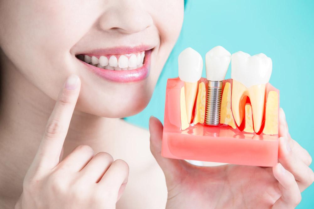 I vantaggi degli impianti dentali