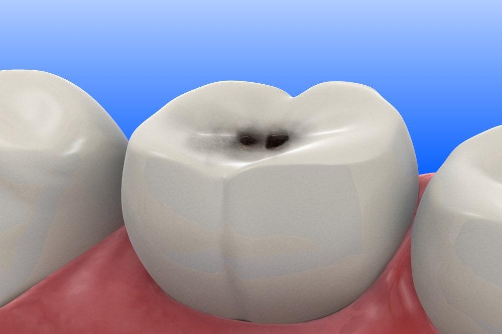 Carie dentali non curate