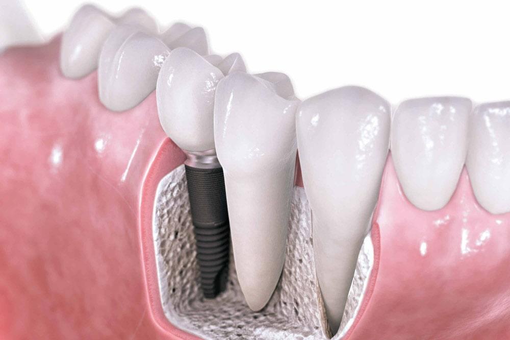 Costo del dente fisso