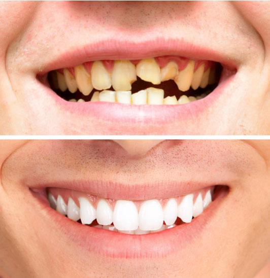 corone dentali zirconio