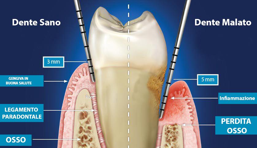 dente malato