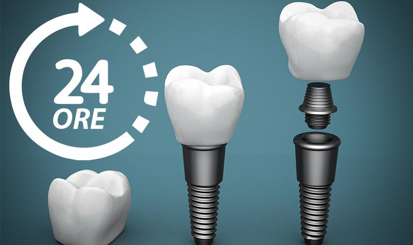 impianti dentali completi in un giorno