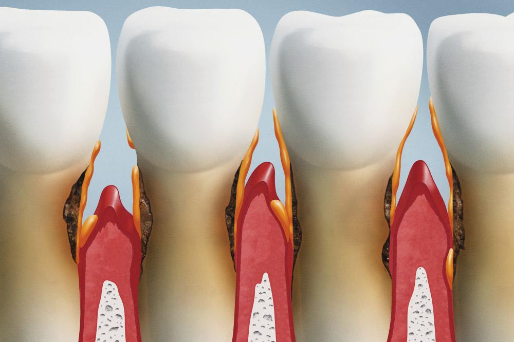 Denti che si muovono