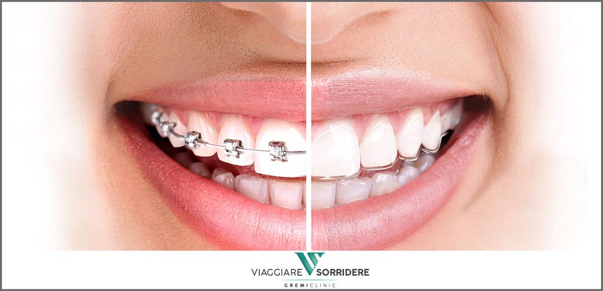 Correggere i denti
