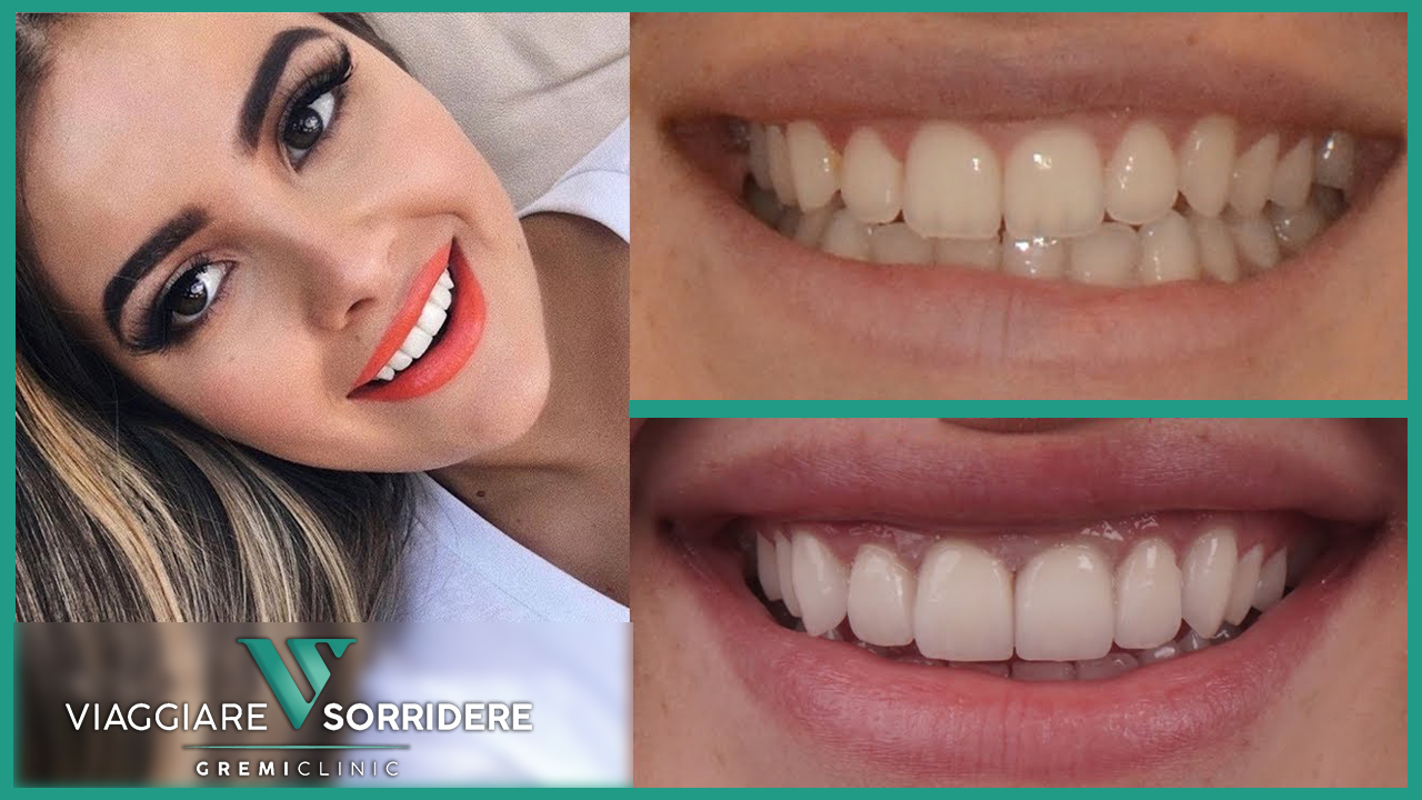 facette dentali costo