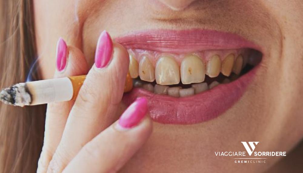 Impianti dentali e fumo