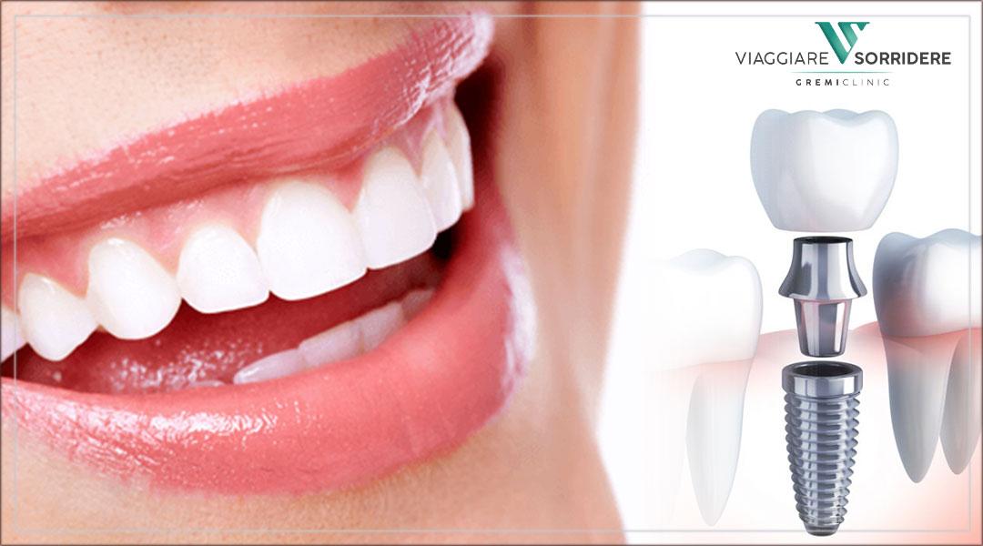 Impianti dentali senza dolore