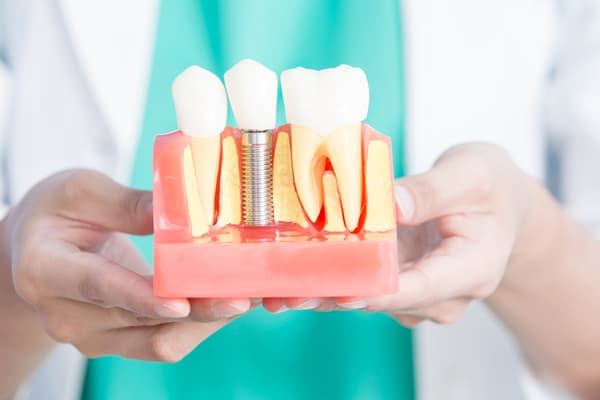 impianti dentali istino prezzi