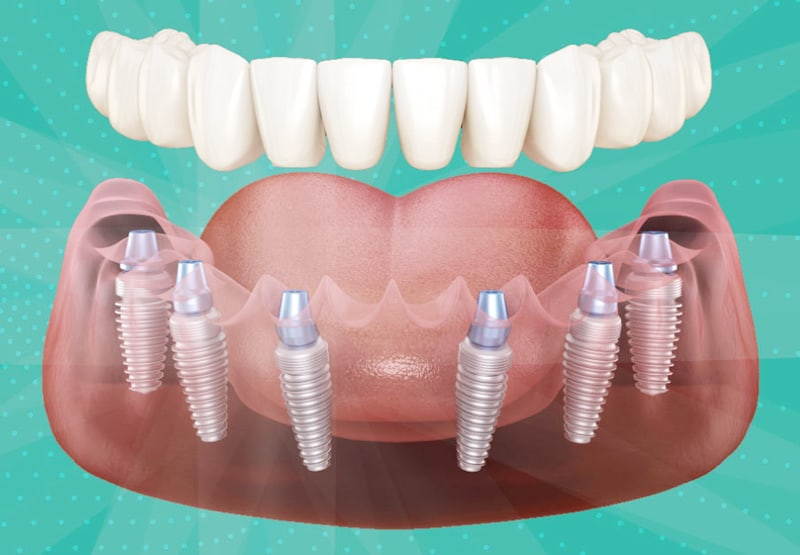 protesi dentali fisse prezzi